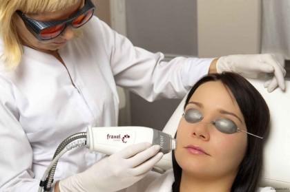 Лазерный пилинг лица: модный тренд или необходимость?